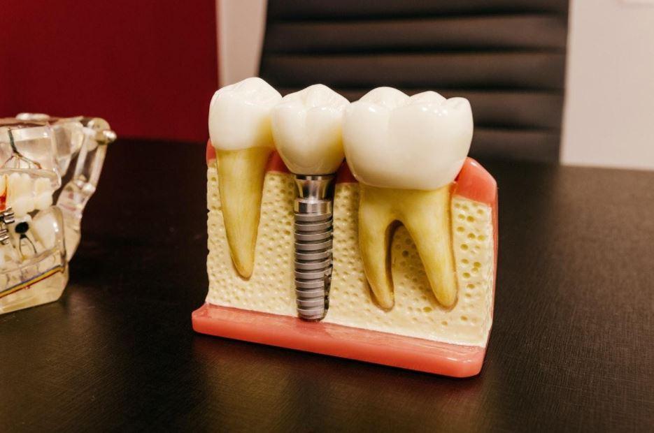 Tout ce qu'il faut savoir sur l'implant dentaire